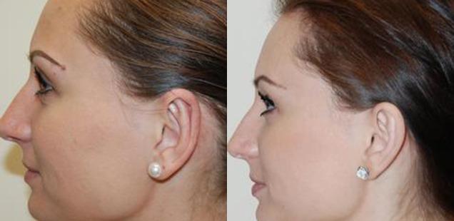исправление ушей
