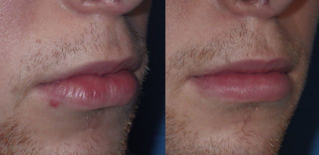 хейлопластика нижней губы