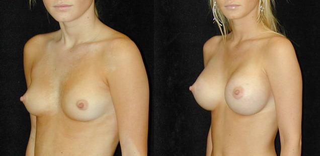 фото до увеличения груди