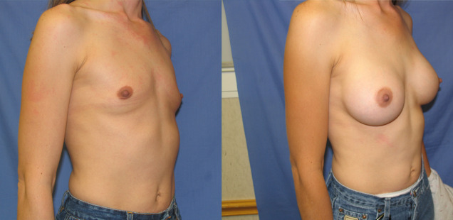 грудные имплантаты