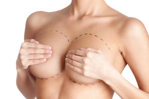 маммопластика груди, разновидности