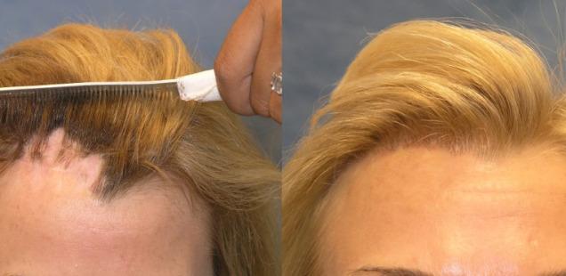 пересадка волос у женщин фото