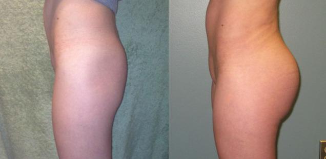 глютеопластика до и после