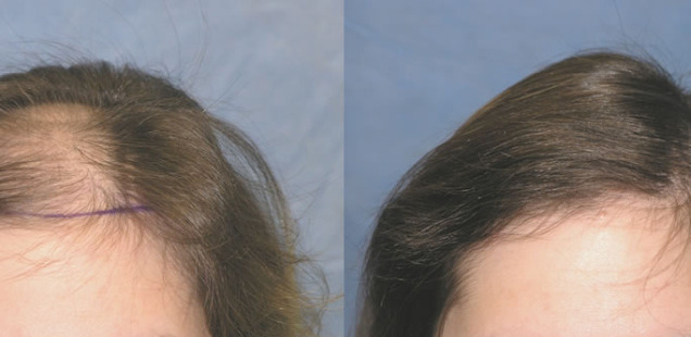 женская пересадка волос фото