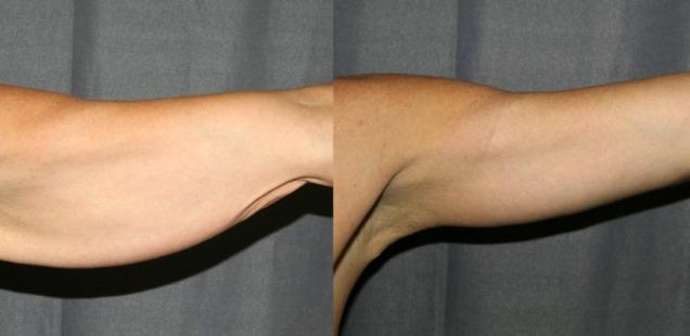 брахиопластика фото после