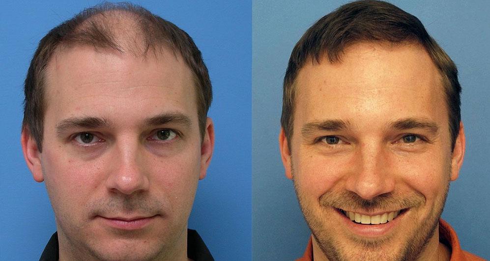 Отзывы прибор для восстановления волос naomi