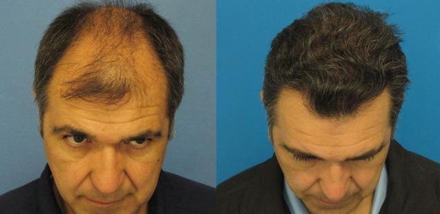 фото после пересадки волос
