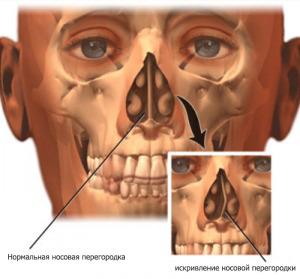 Септопластика, искривление носовой перегородки