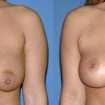 Фото до и после подтяжки груди