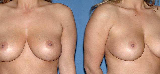подтяжка груди до и после