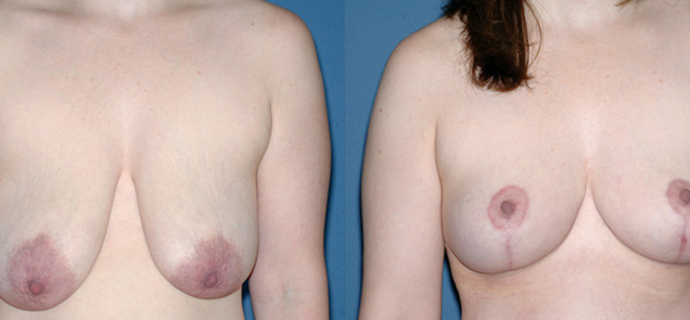 фото после подтяжки груди