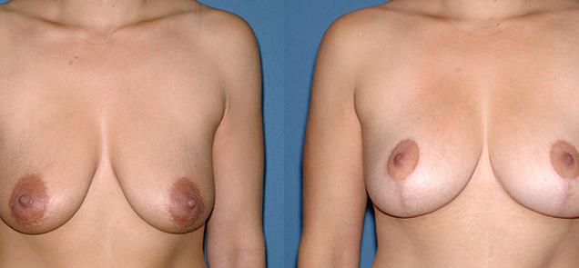 fфото после мастопексии