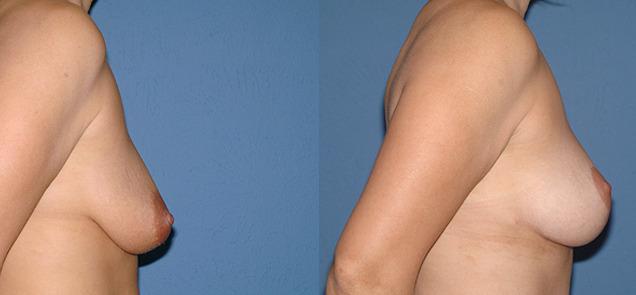 после мастопексии