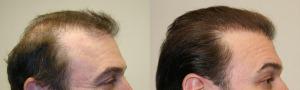 фото после мезотерапии волос