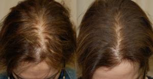 после мезотерапии волос