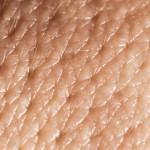 Пересадка кожи — кожная пластика, дермопластика
