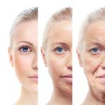 Фотостарение кожи — признаки, профилактика и коррекция