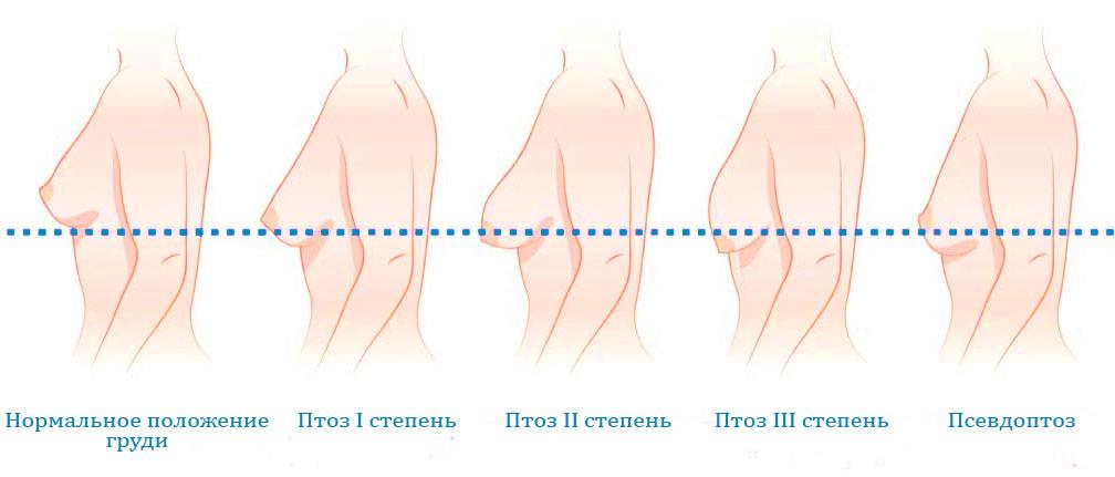 птоз молочной железы