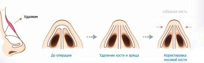 операция ринопластика
