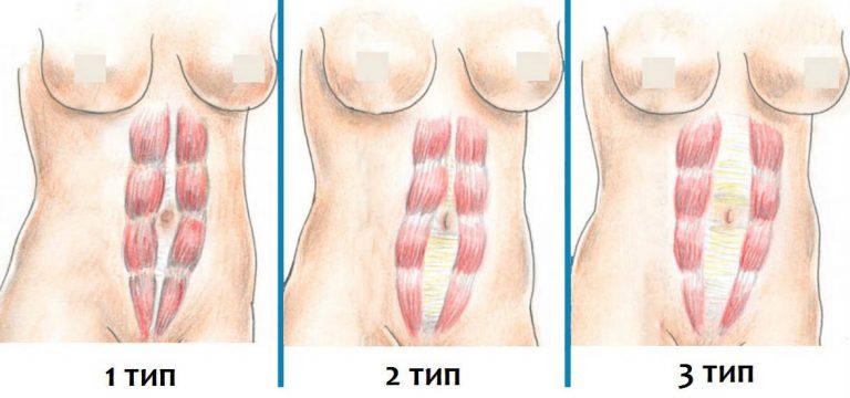 диастаза прямых мышц