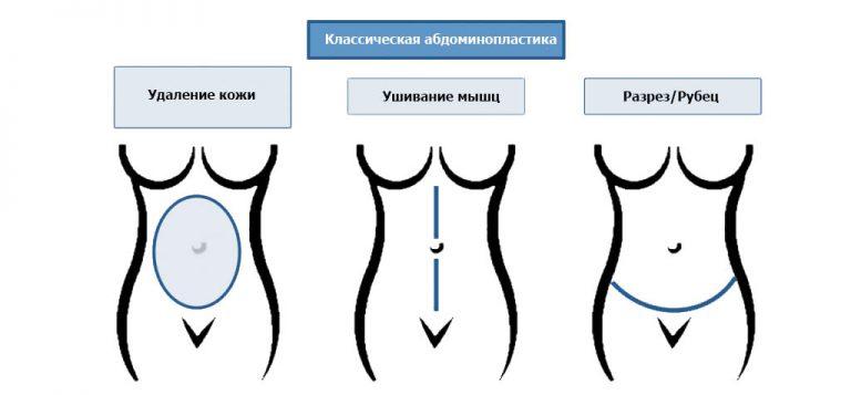 стандартная абдоминопластика