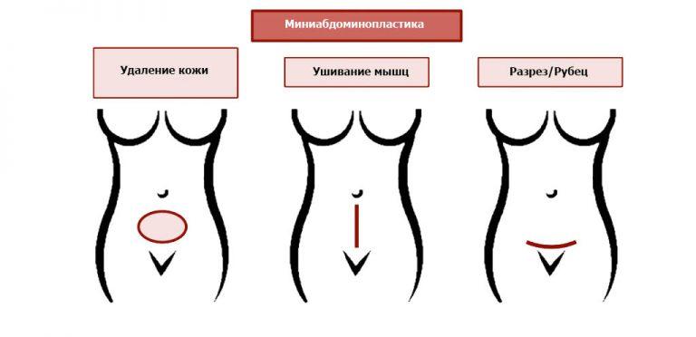миниабдоминопластика