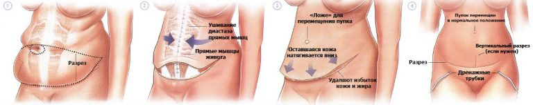классическая абдоминопластика