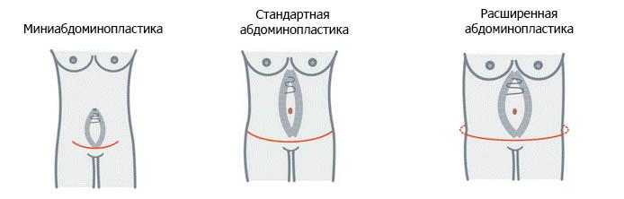 виды абдоминопластики